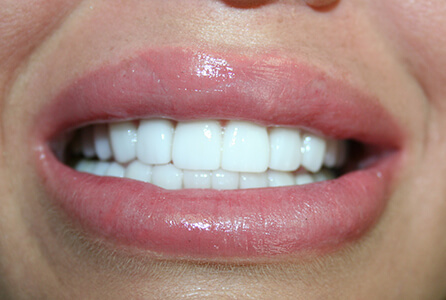 Perfect smile after treatment