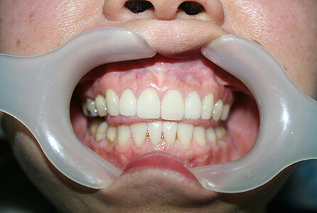 White healthy teeth after treatment