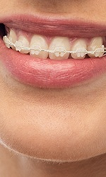 Clear and ceramic braces