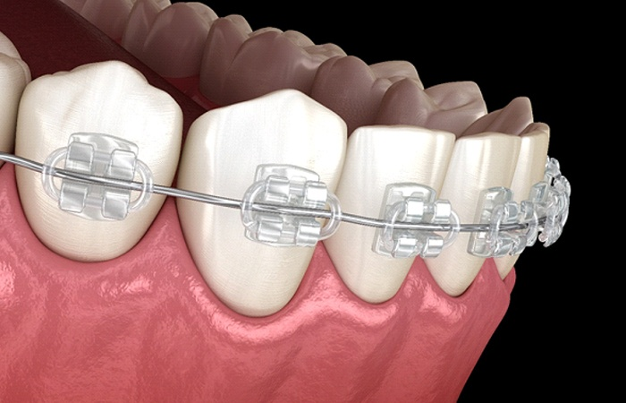 computerized model of clear braces