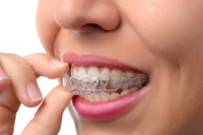 Woman putting in a clear aligner tray