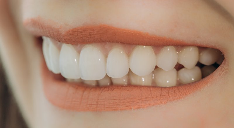 Woman after teeth whitening in Studio City